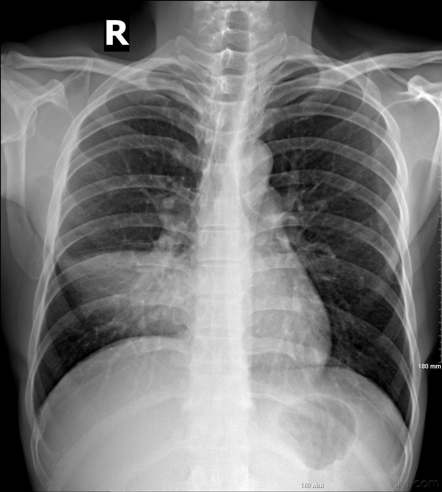 胸片侧位解剖图 卧位胸片