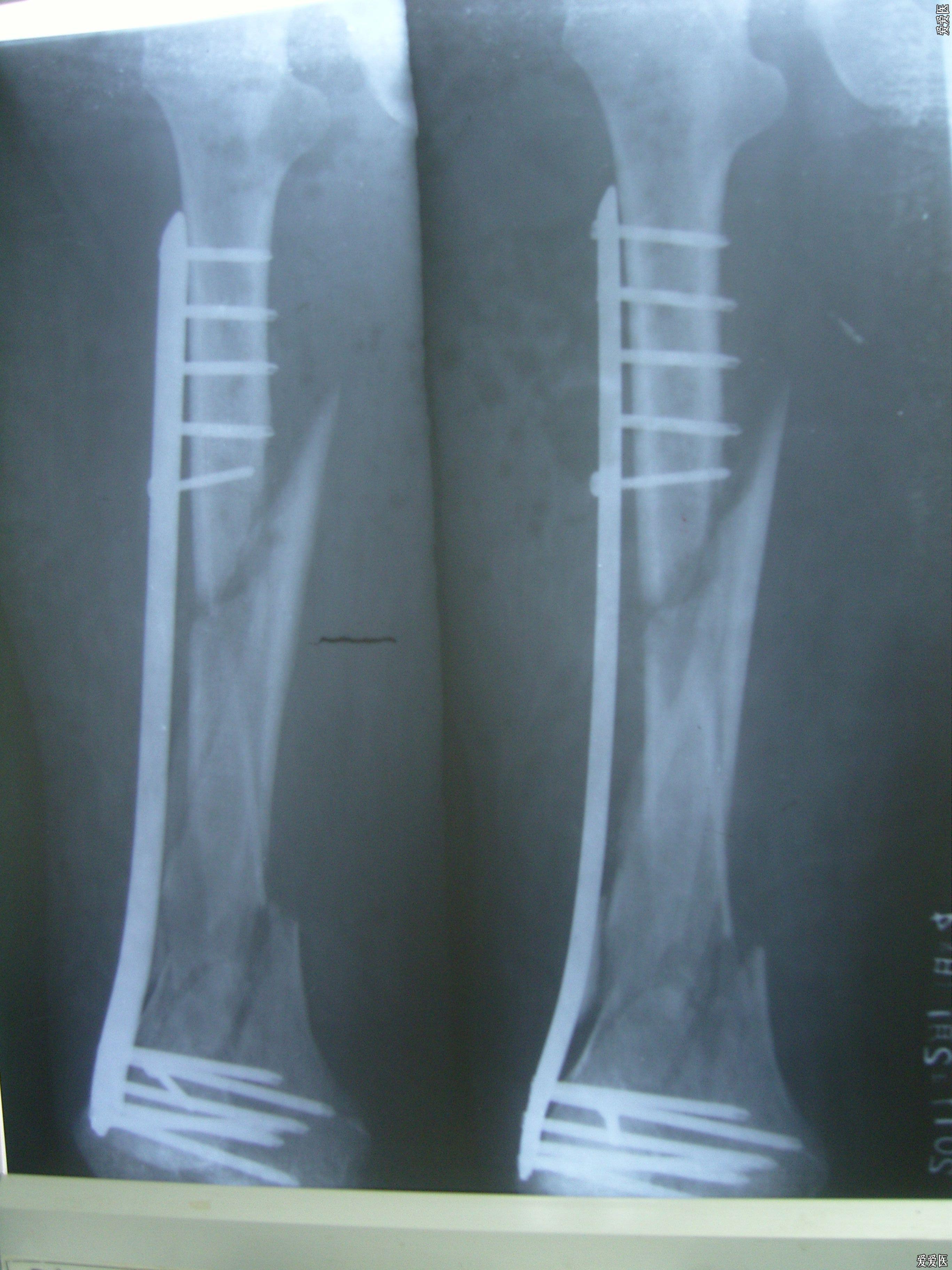 從片中可以看出,股骨中下斷螺旋形骨折,分離,要是植骨就更好了,此例病圖片