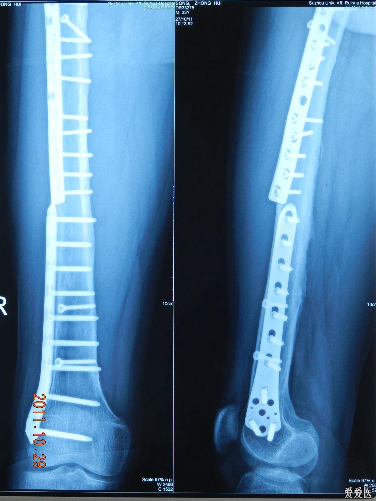22:22:58   男患者,32歲,摔傷致有股骨近端長螺旋形骨折行接骨板螺釘圖片