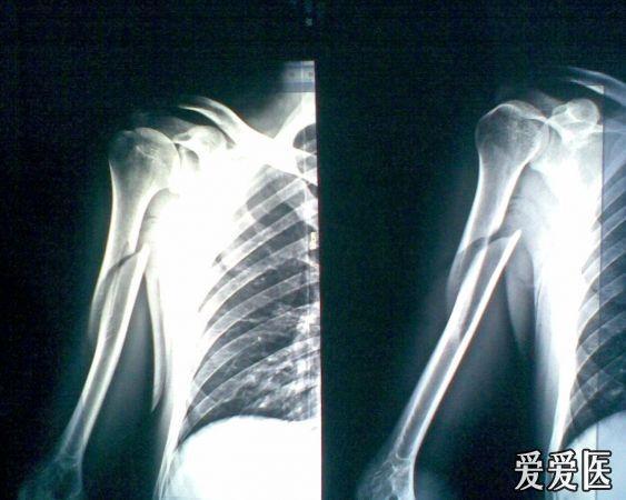 和術后那張沒什么不同,從網上查資料說,肱骨的螺旋形骨折愈合較快,五圖片