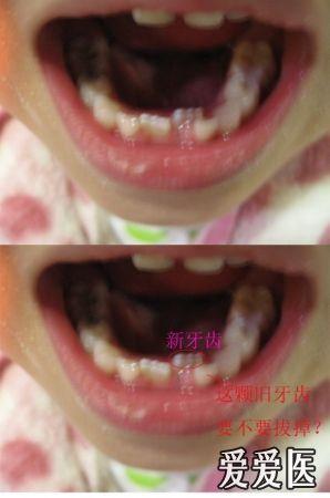 梦见自己下面的牙齿全部掉了