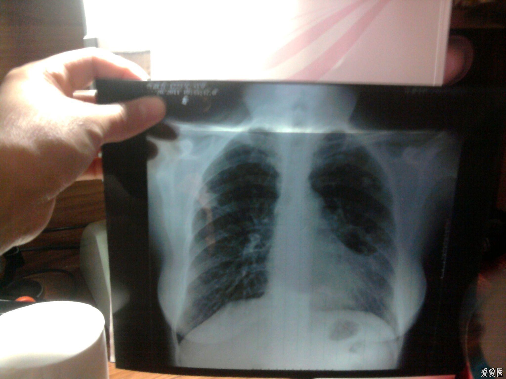 女性肺结核的早期症状有哪些