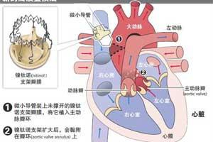 心脏瓣膜置换术费用