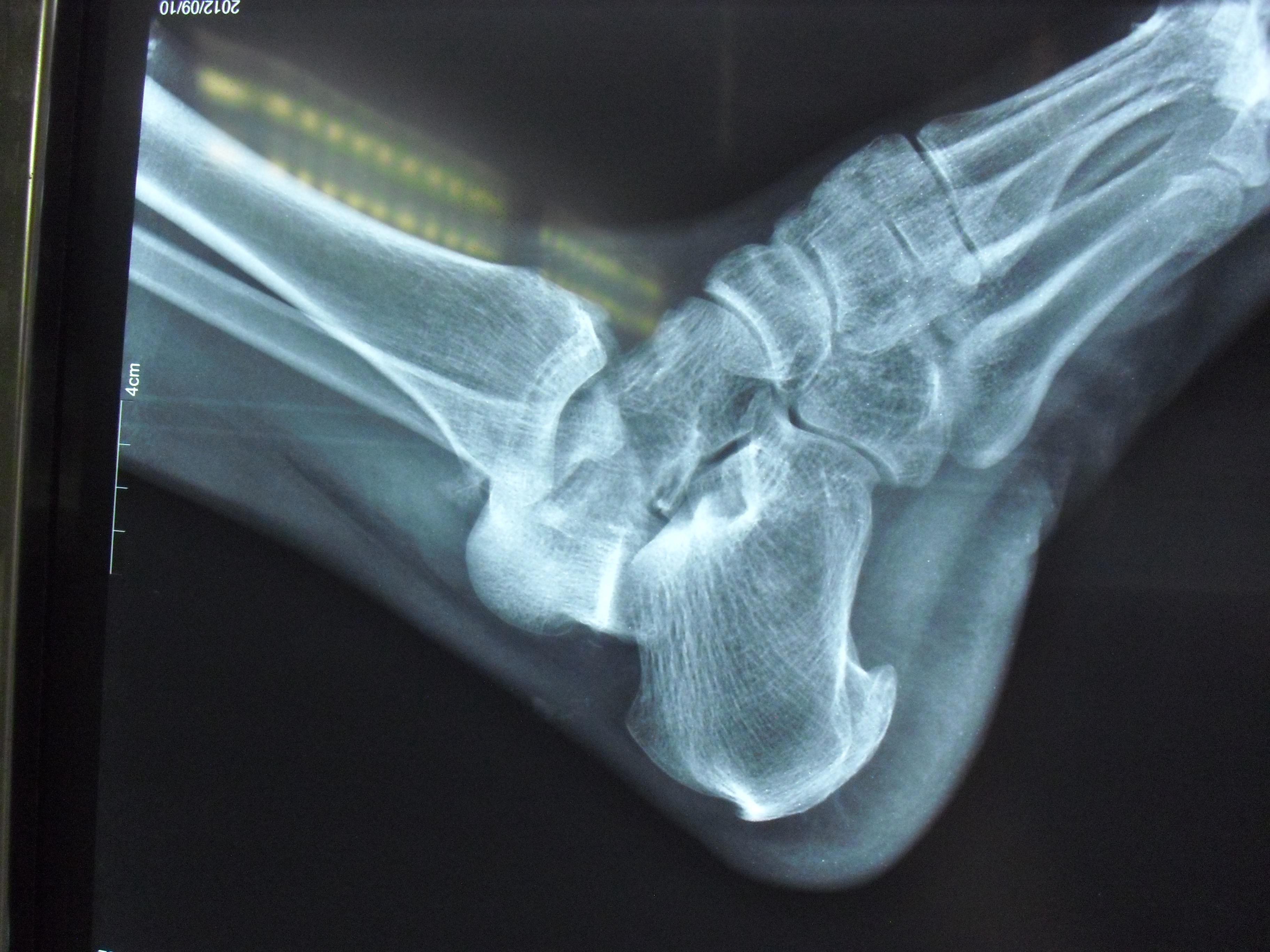 j腳內踝骨折四個月了還一瘸一拐什么走路時候才能正常圖片