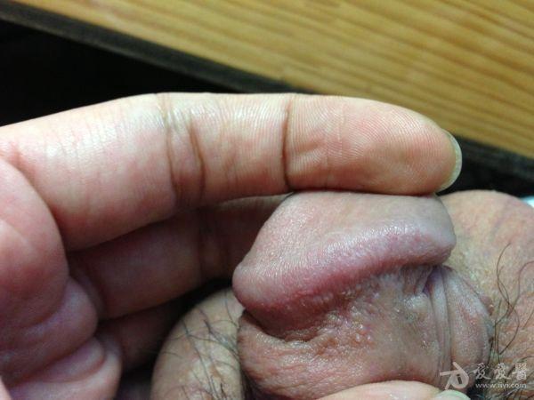 冠状沟珍珠疹图片_这是尖锐湿疣还是珍珠疹-我这到底是尖锐湿疣还是珍珠疹