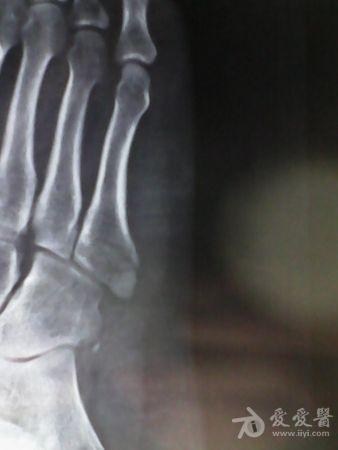 脚第五跖骨基底部骨折上石膏几天后可以拆石 快速问医生 免费咨询