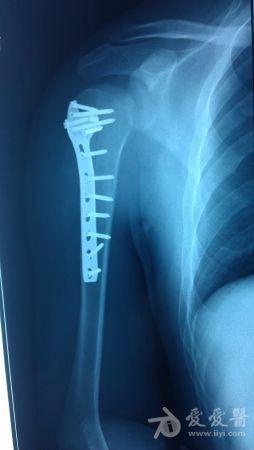 21:23:58如題,術前位置在x片上看還可以,術中發現肱骨上端螺旋形上升圖片