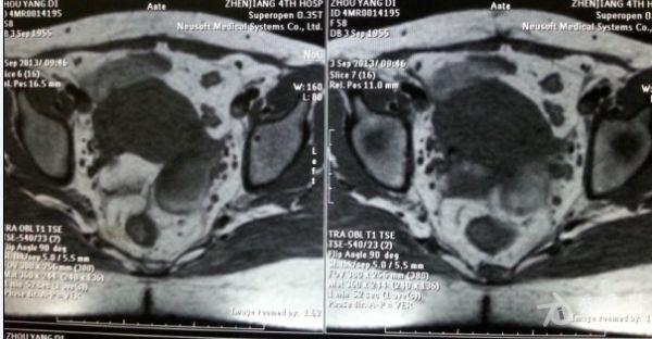 相隔半年的ct和核磁的盲肠系膜淋巴结有没变大啊