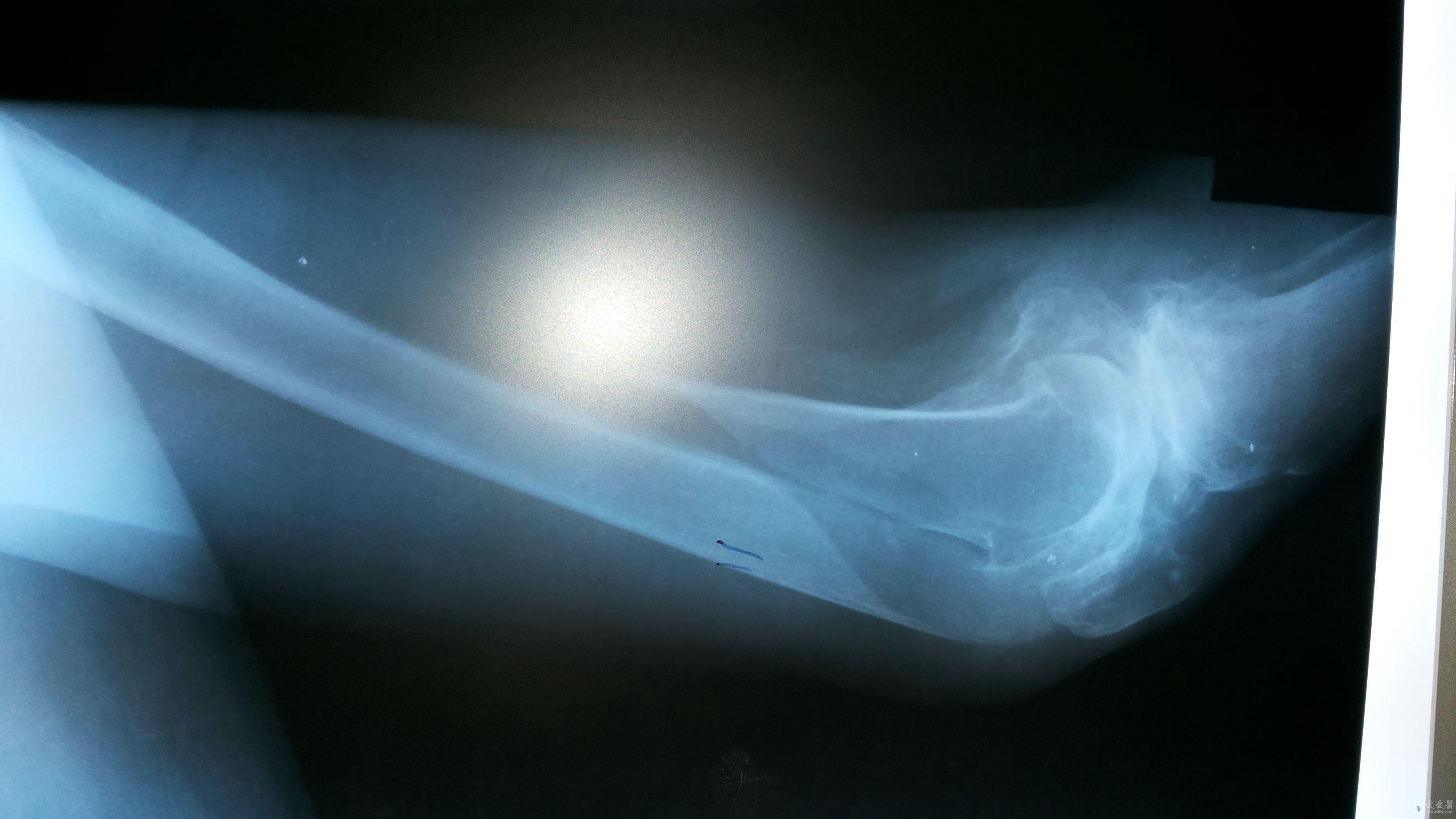 90歲股骨遠端長螺旋形骨折圖片