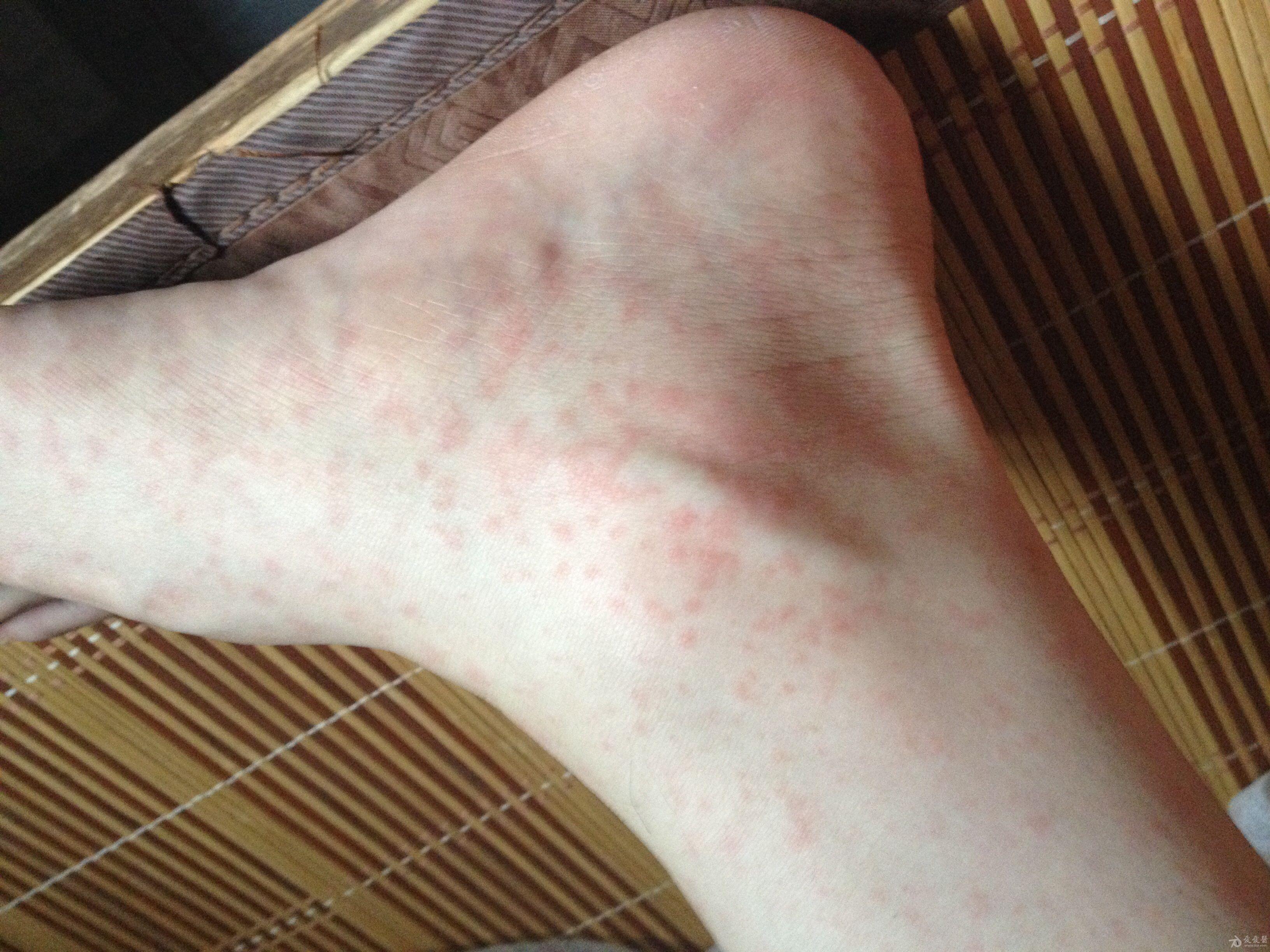 梅毒大腿根部红斑图片-热疹症状图片 婴儿病毒疹 孢疹的症状