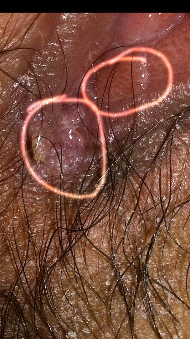 冠状沟有珍珠疹图片_假尖锐湿疣初期图片 _排行榜大全