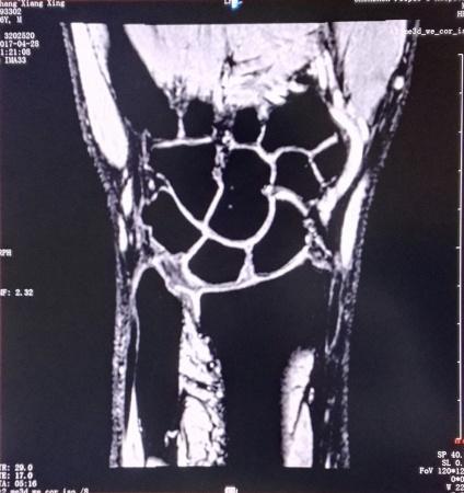 病例57——认识三角纤维复合体