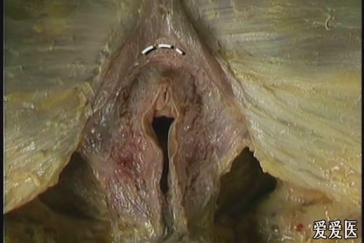 女性盆骨及盆底肌肉