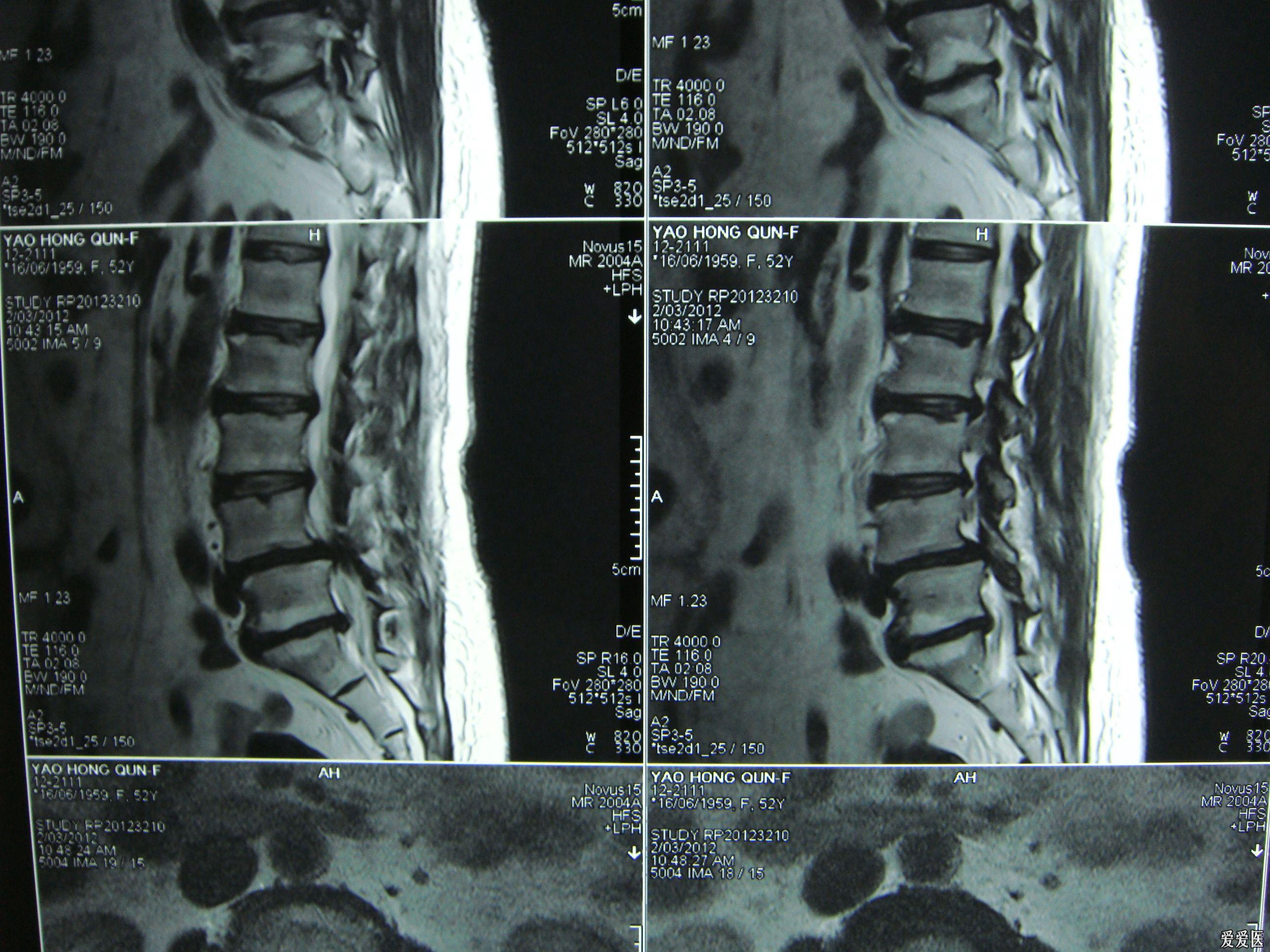 腰椎间盘突出并椎管狭窄