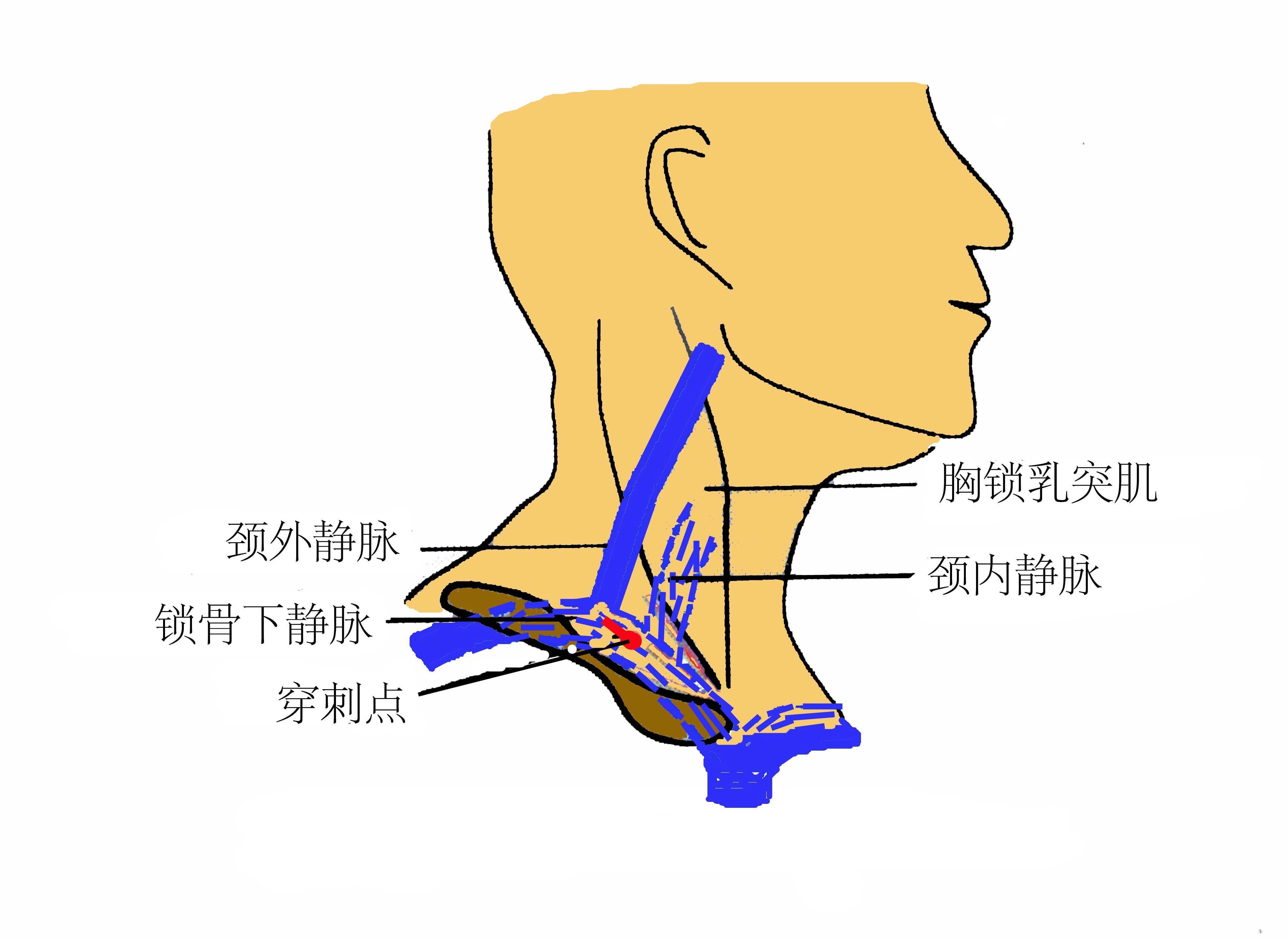 锁骨下静脉穿刺图