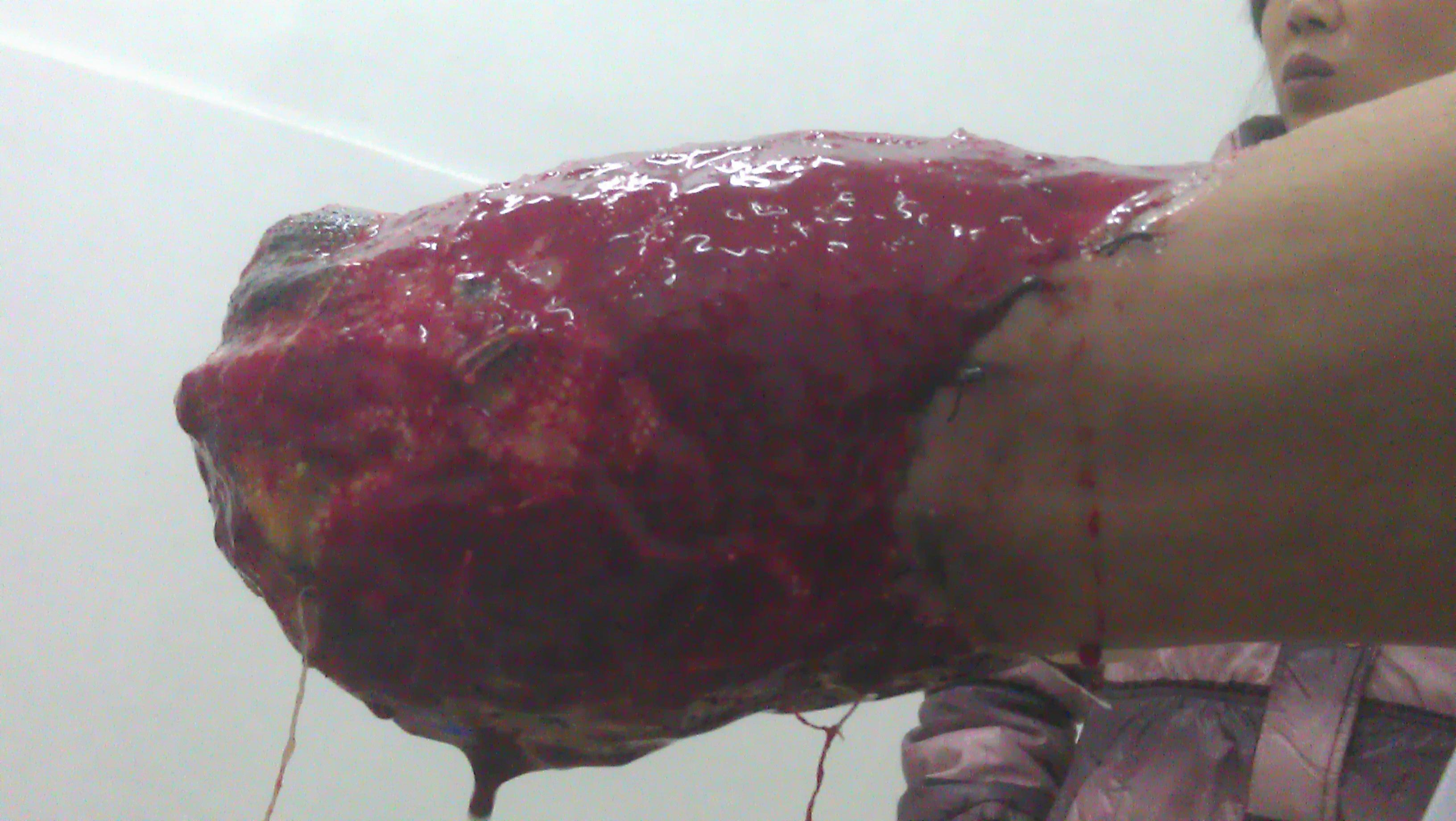 女涩xx网_注册x  患者:赵xx,男性,42岁.   主诉:右上肢机器绞伤1小时.