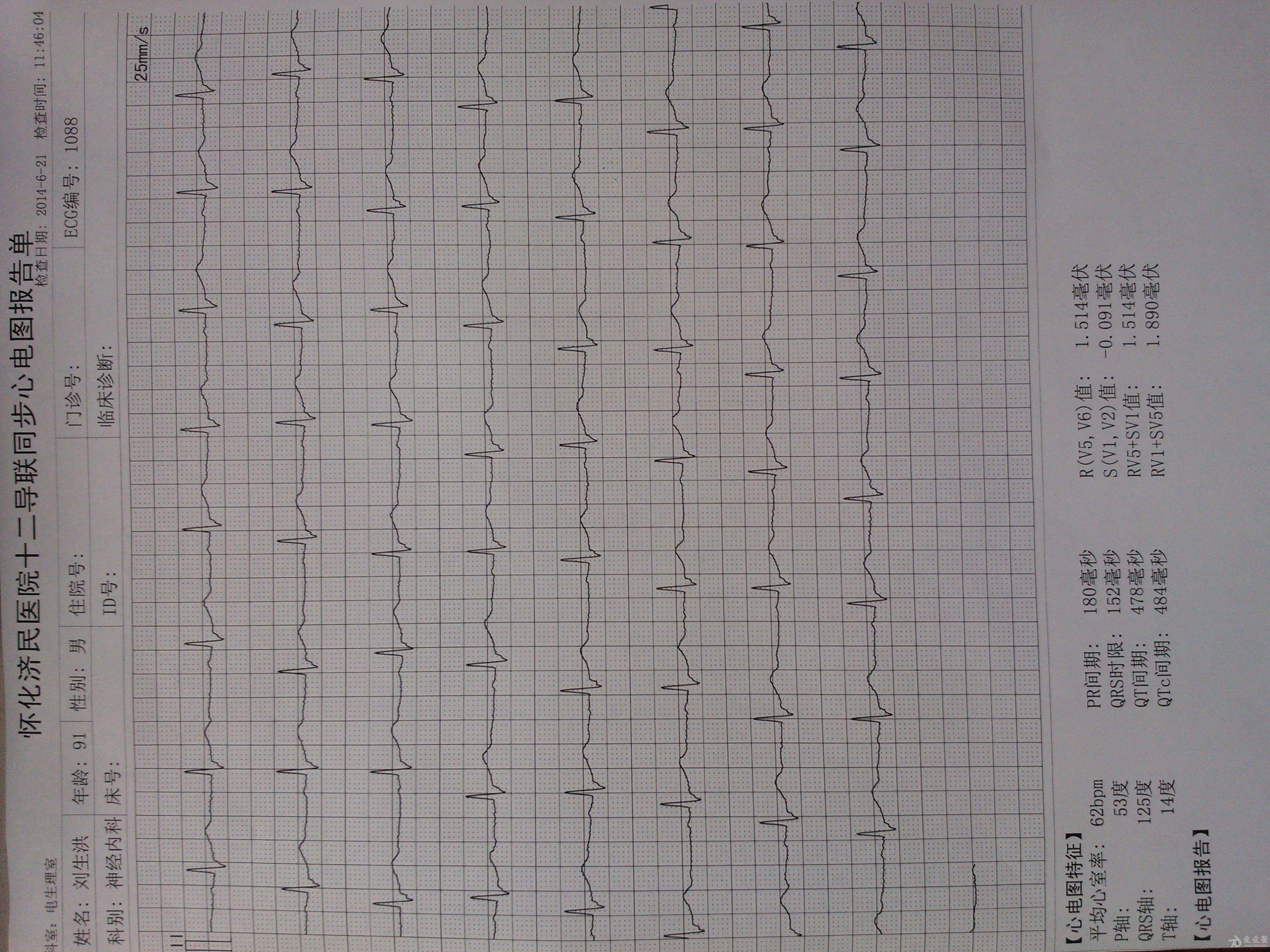 这是同一个患者的标2导联的心电图