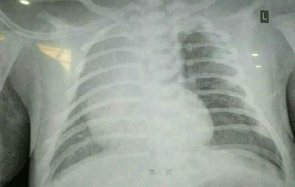 全科病例讨论——(5)一例出生后呻吟的患儿