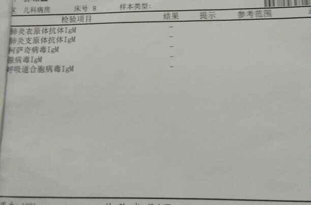 IMG_20170511_212642.JPG