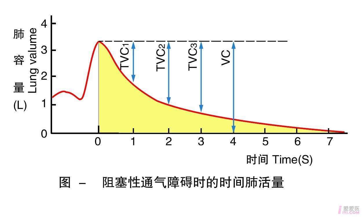 20-阻塞性通气障碍时的时间肺活量 .jpg