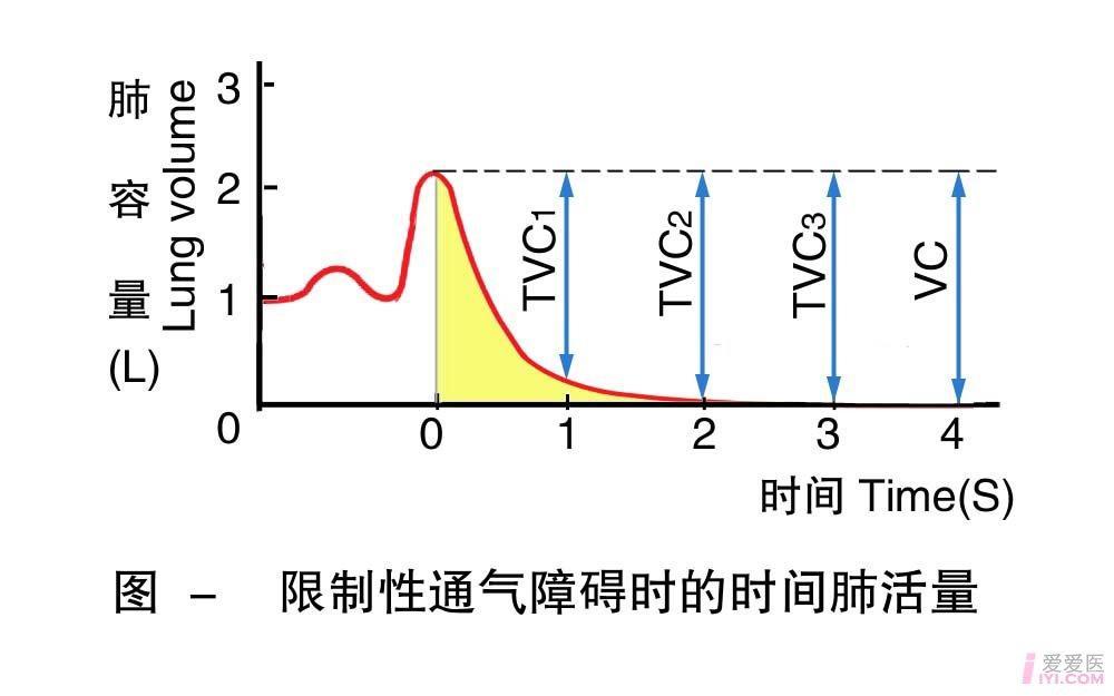 21-限制性通气障碍时的时间肺活量 .jpg