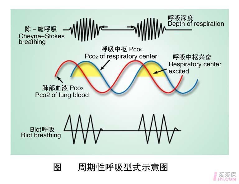 29-周期性呼吸型式示意图 .jpg