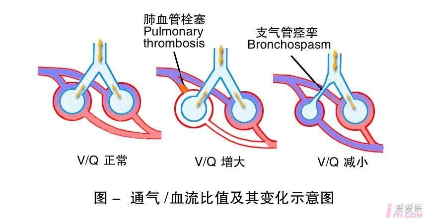 9-通气血流比值及其变化示意图.jpg