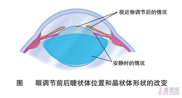 2-眼调节前后睫状体位置和晶状体形状的改变.jpg