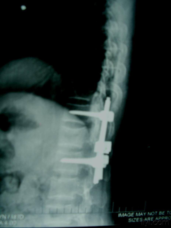 儿童腰椎压缩性骨折