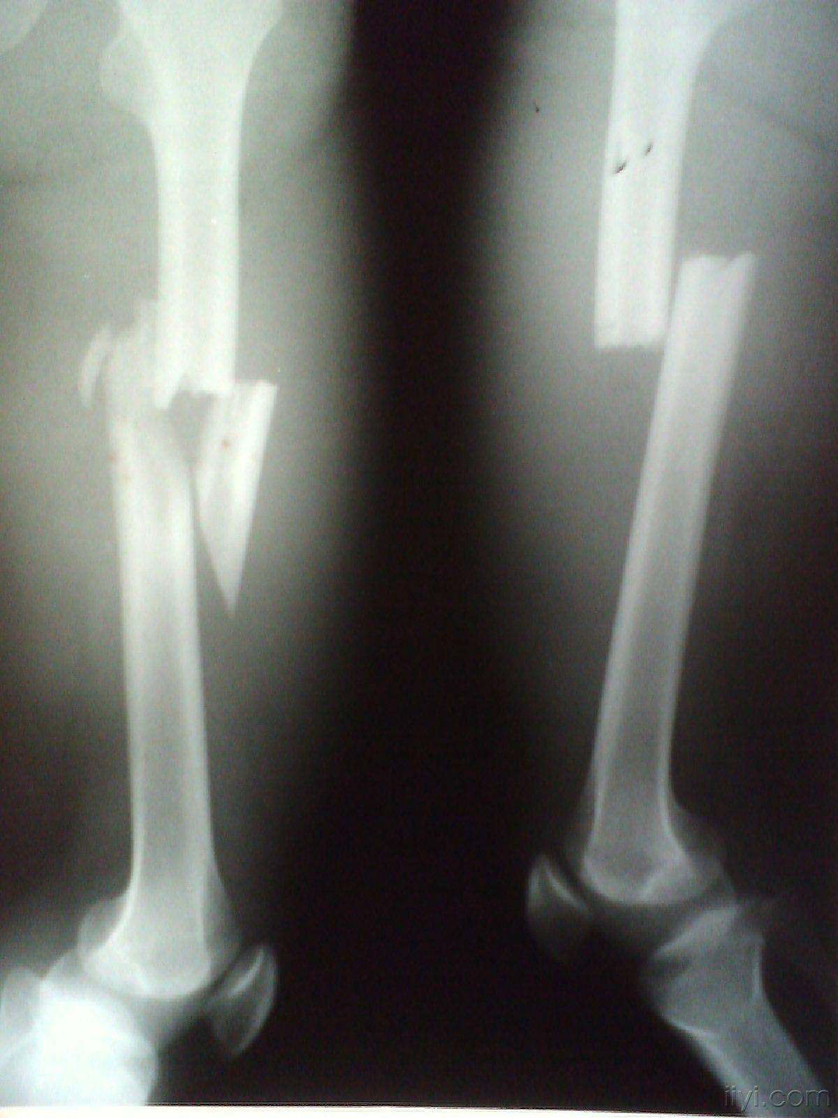 专家论坛|成人股骨干骨折髓内钉治疗需要关注的问题  髓内钉有终生不取的吗
