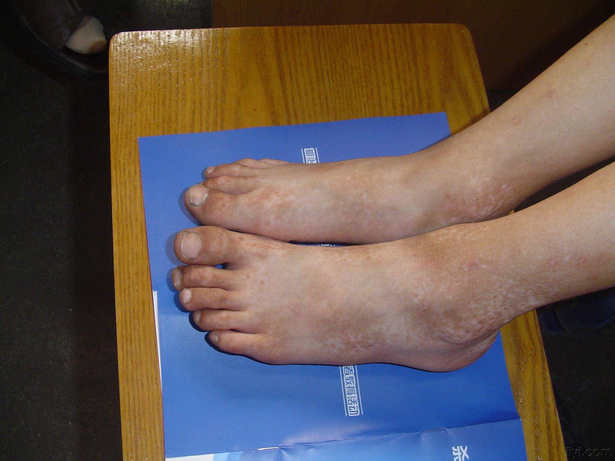 遗传性厚甲症图片