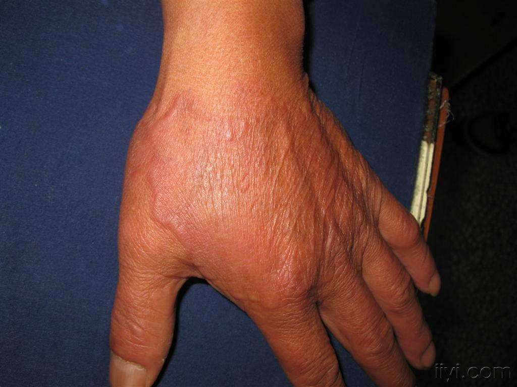 皮下脂肪结节图片
