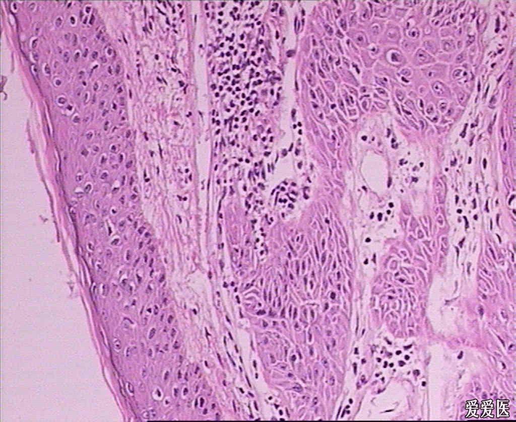 黑棘皮瘤的危害都有哪些?_飞华健康问答