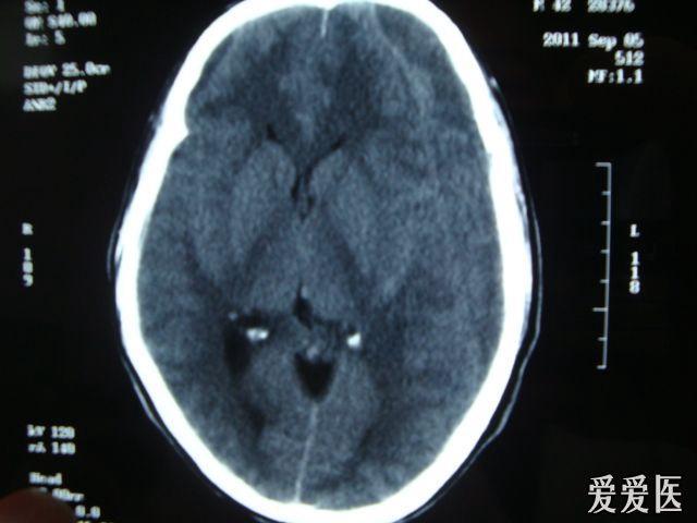 激光治疗血肿的原理_耳血肿怎么治疗