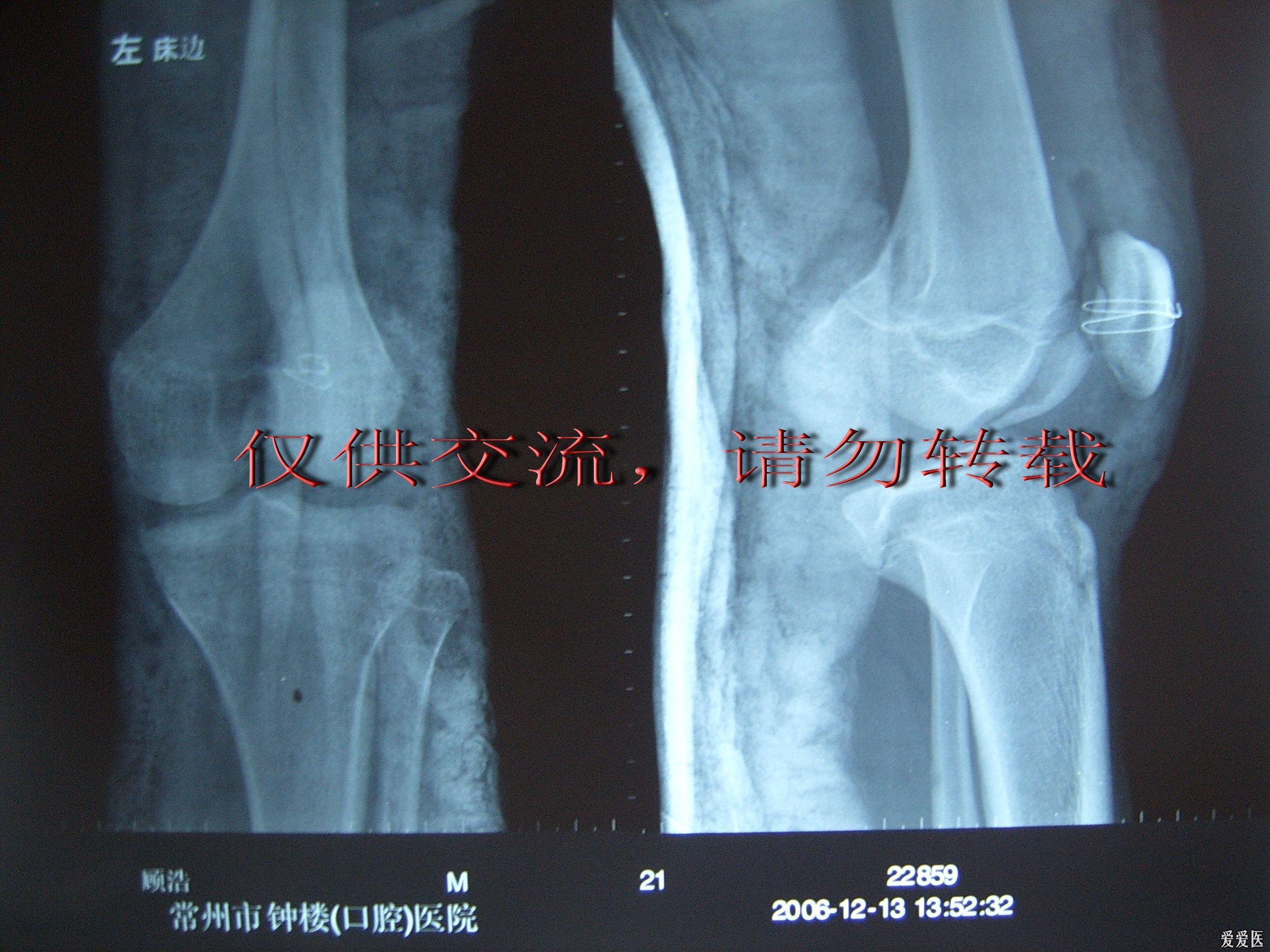 手术后.jpg
