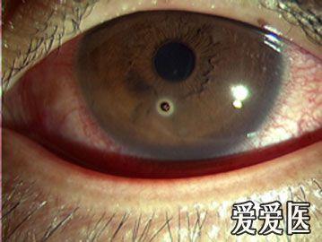 角膜异物.jpg