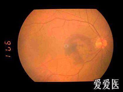 视网膜下出血.jpg