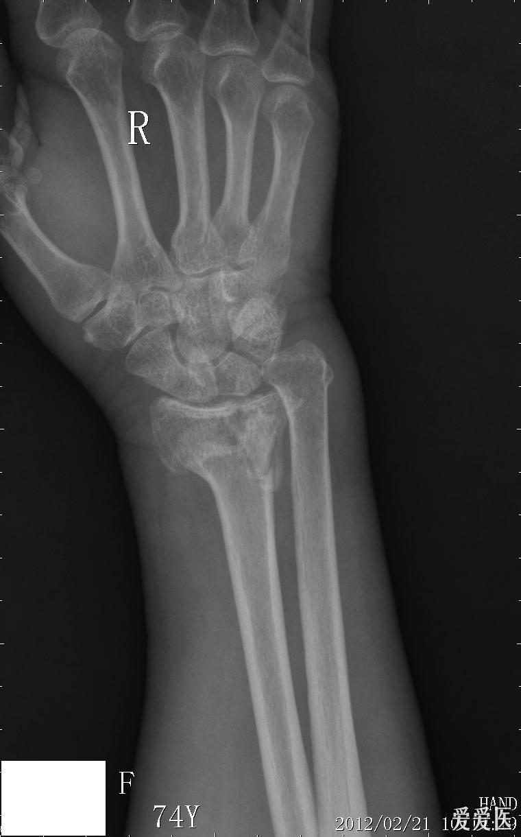 远端尺桡关节(DRUJ)不稳定的诊断与解剖重建  手腕下尺桡关节不稳