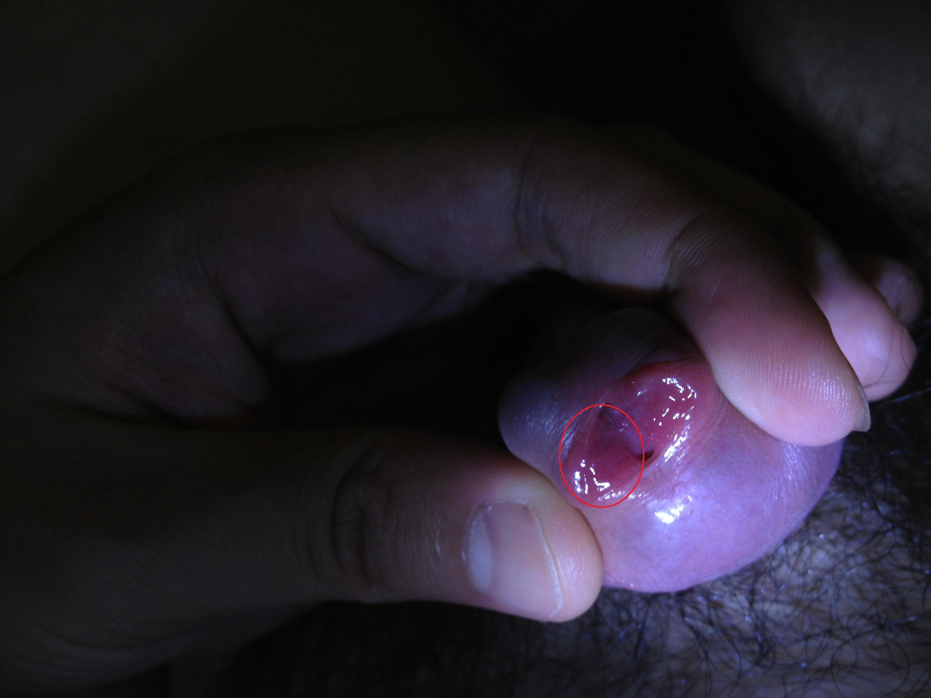 生活不注意, 身体长出这种疣, 你可能感染了性病病毒! _健客网