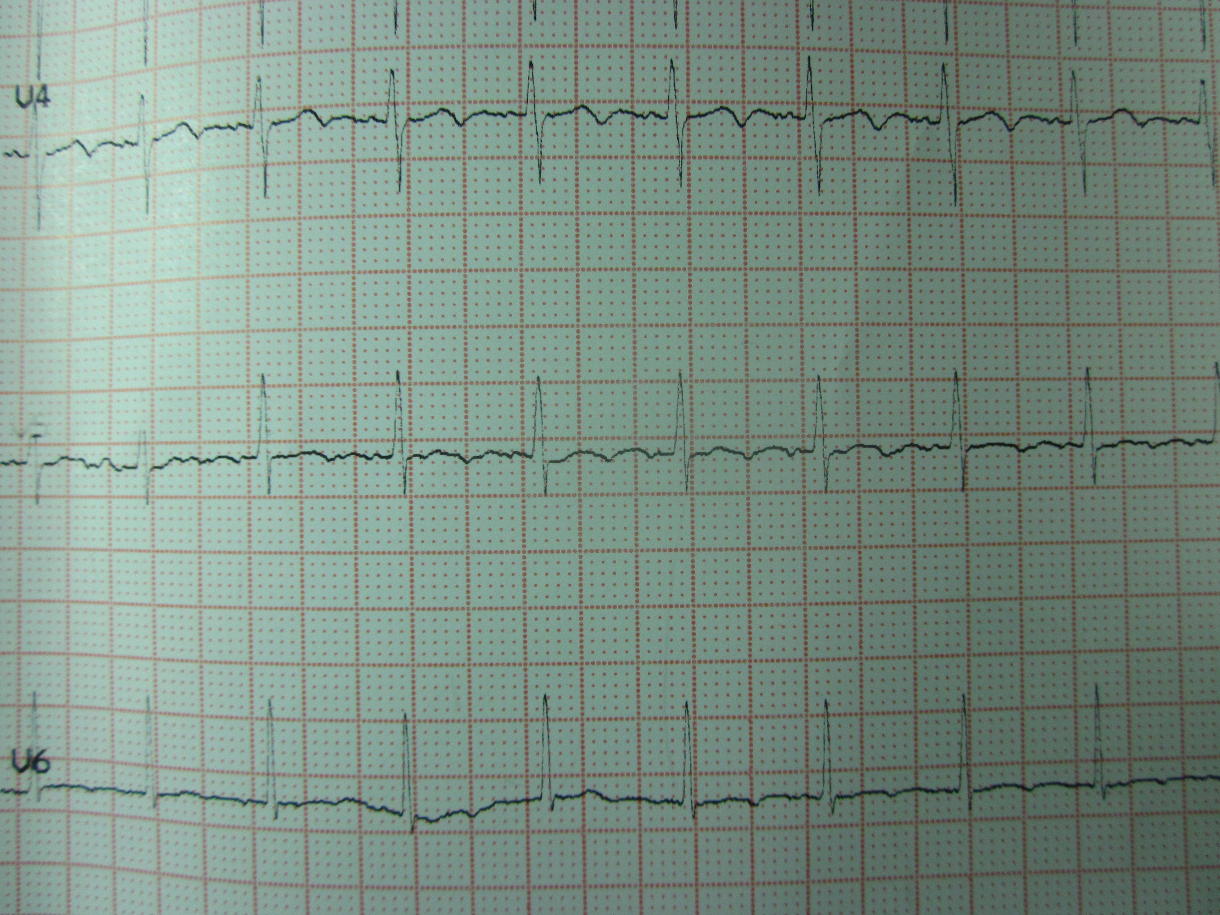食管心电图心动过速