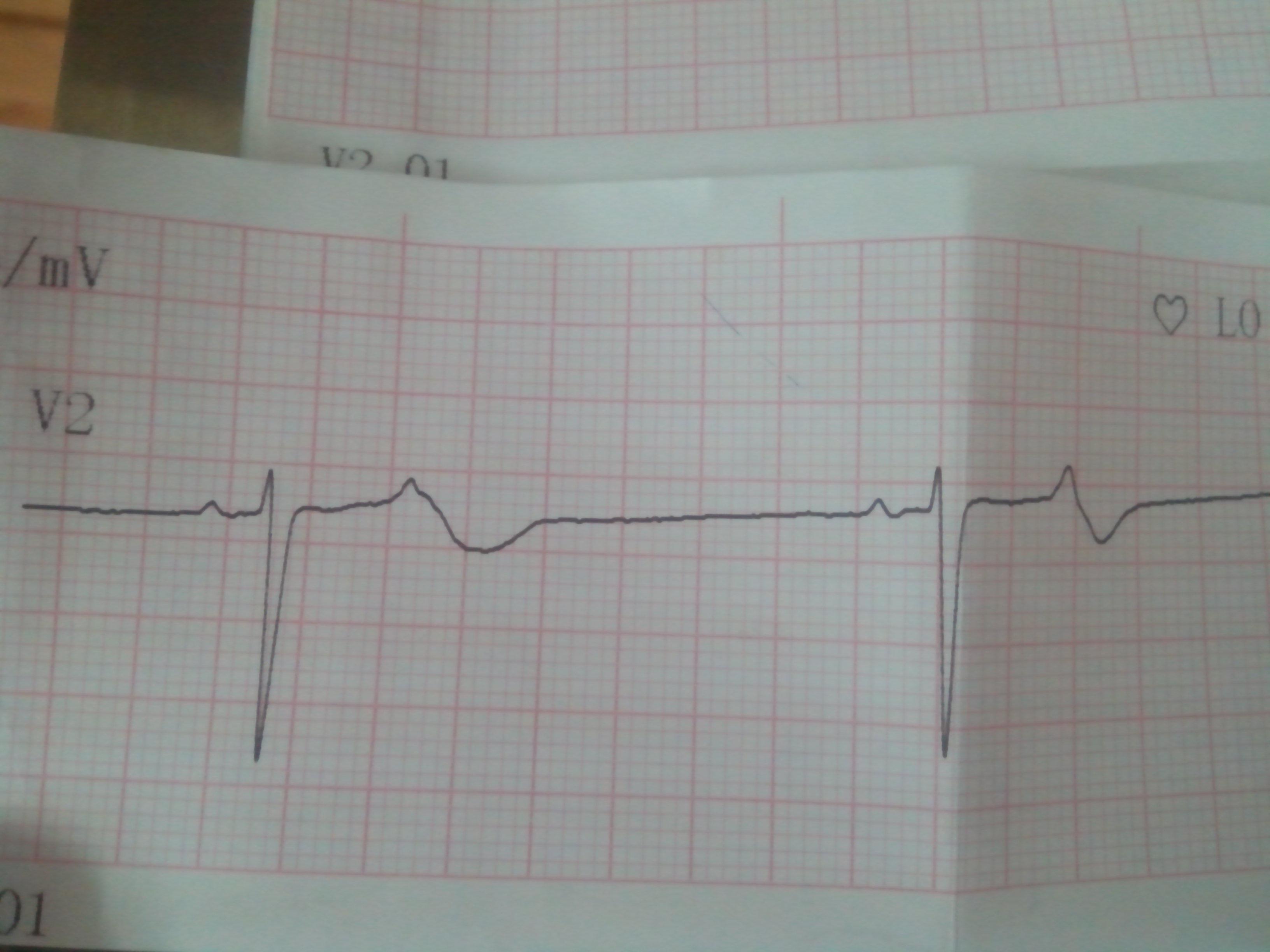 严重心动过速心电图