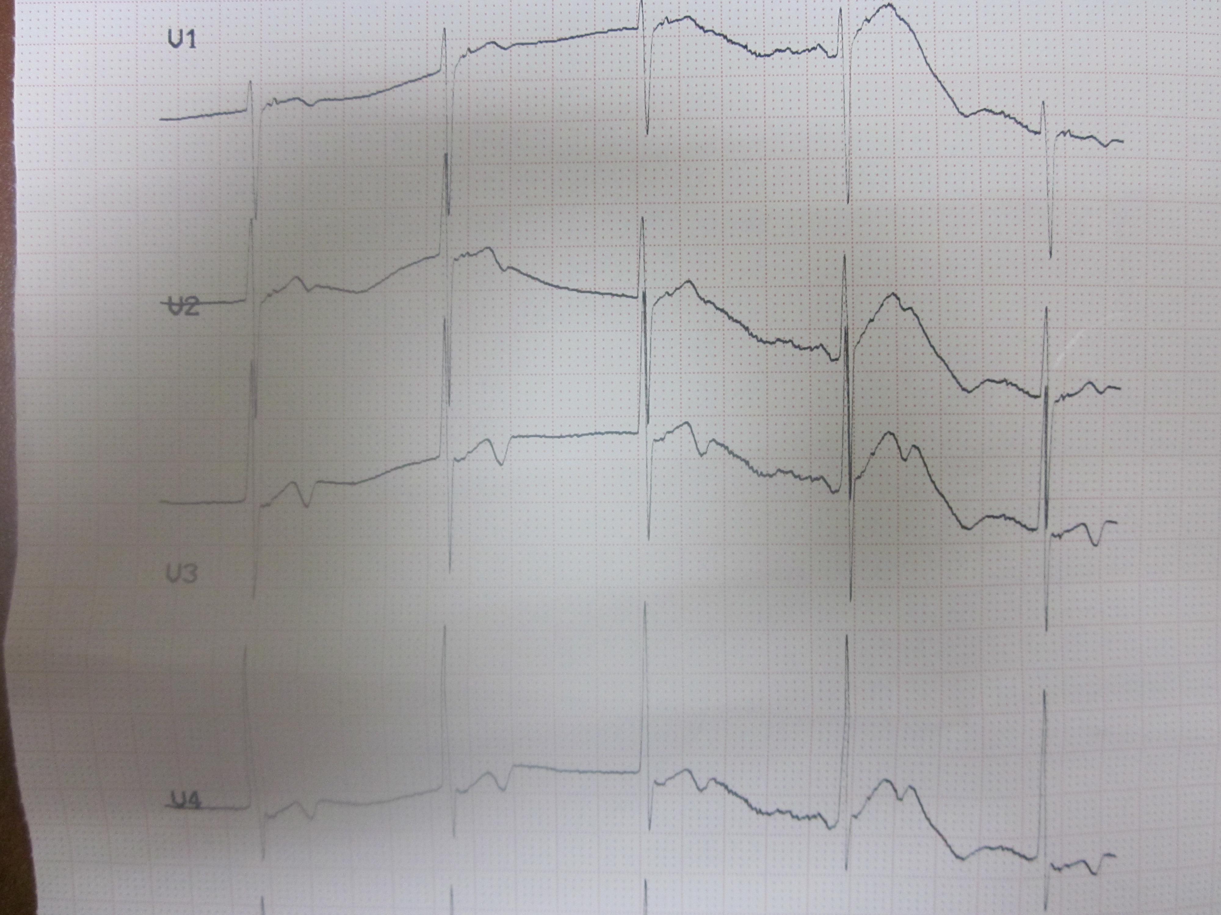 大家看看这是逆行的P波还是Epsilon波 心电图脑电图专业讨论版 爱爱医医学论坛