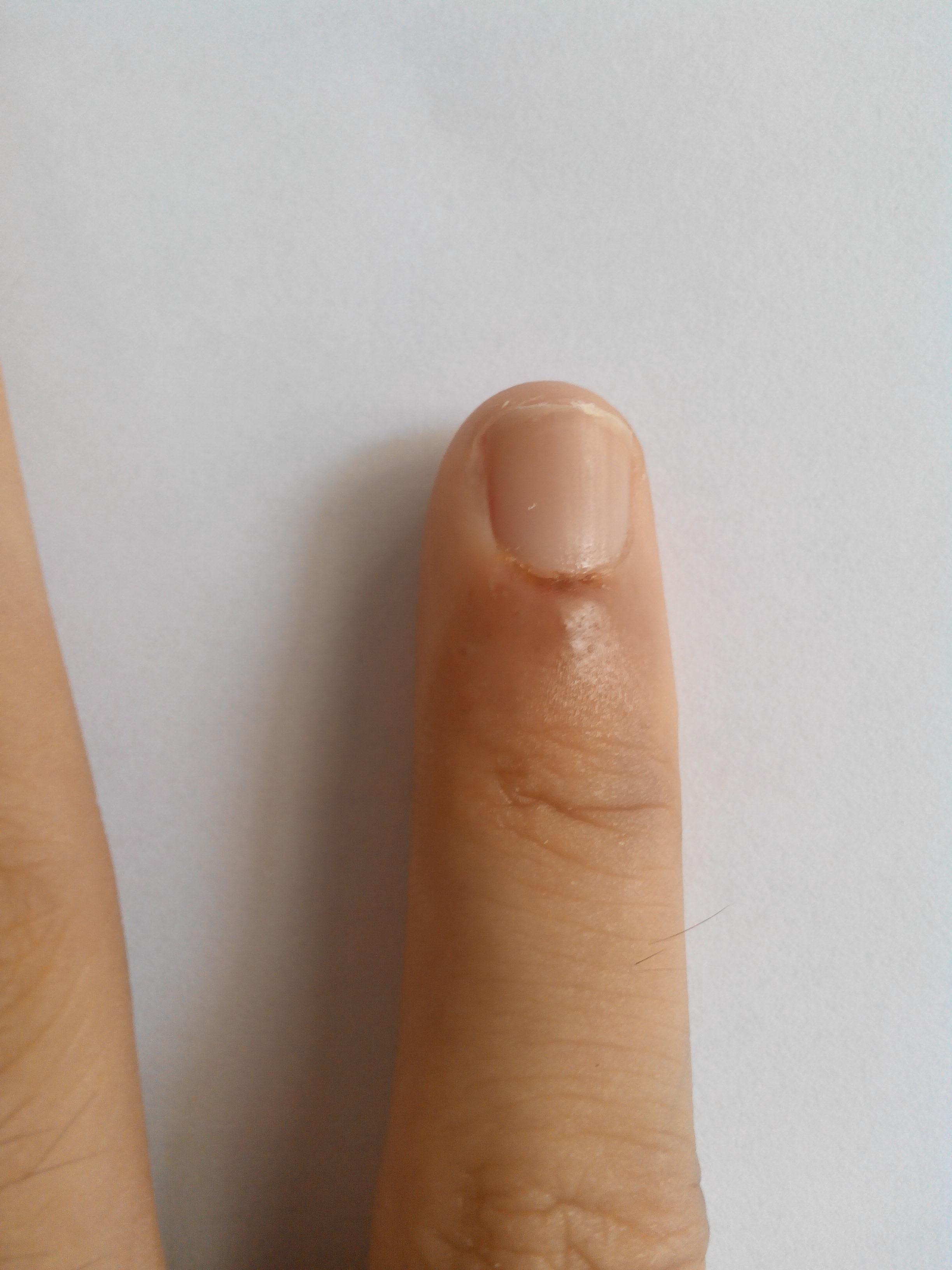 如何用放血疗法治皮肤病_华宇健康