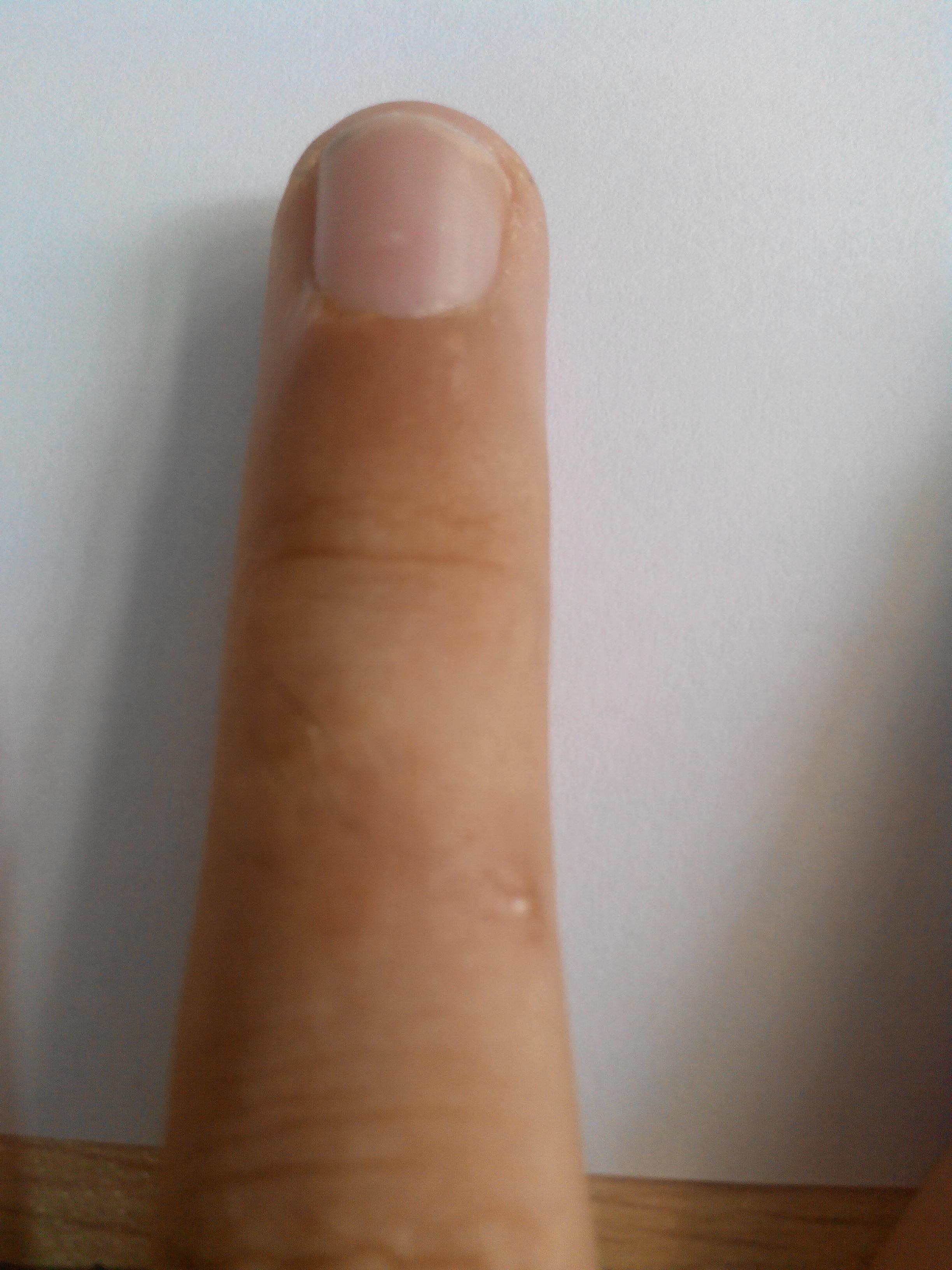 陈虎子委中刺血治荨麻疹,治疗与培训电话15592500386... _204101