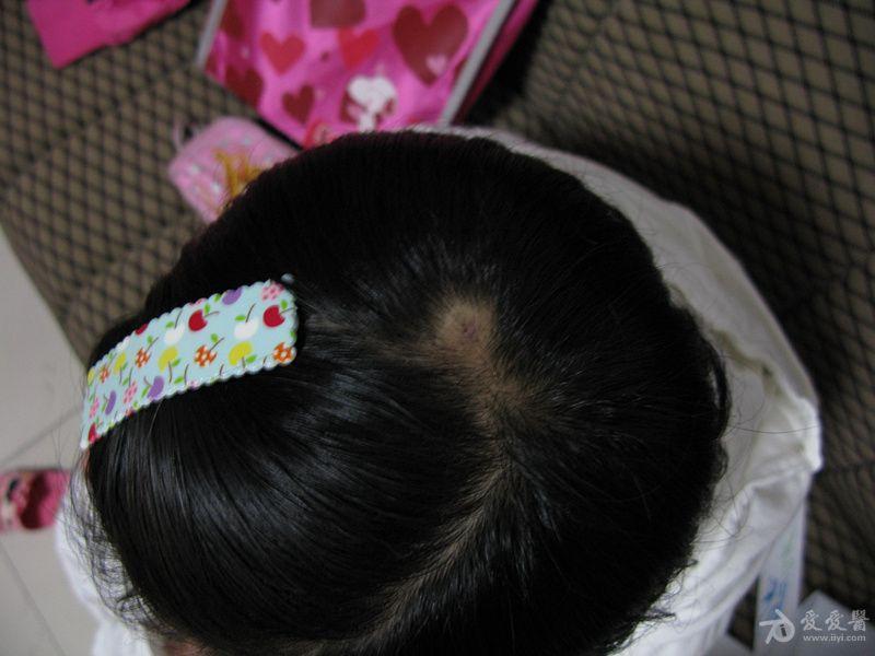 13年11月晚不睡觉偷看书被打骂后,自己抓破头皮开始脱发