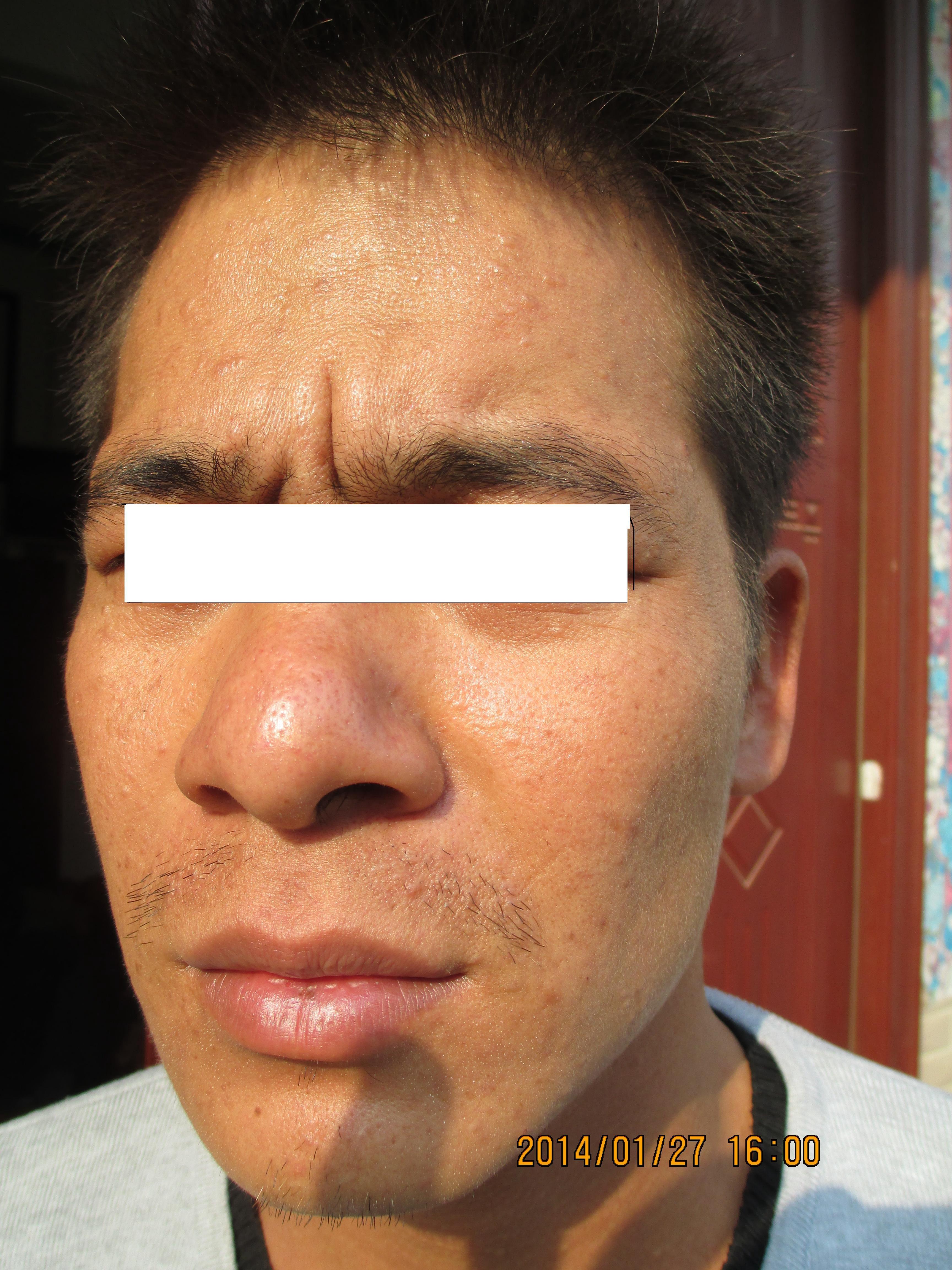 疣状皮肤病 004.jpg