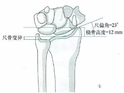 正常X线解剖,前后位,桡骨高度、尺偏角和尺骨变异的测量-尺桡骨