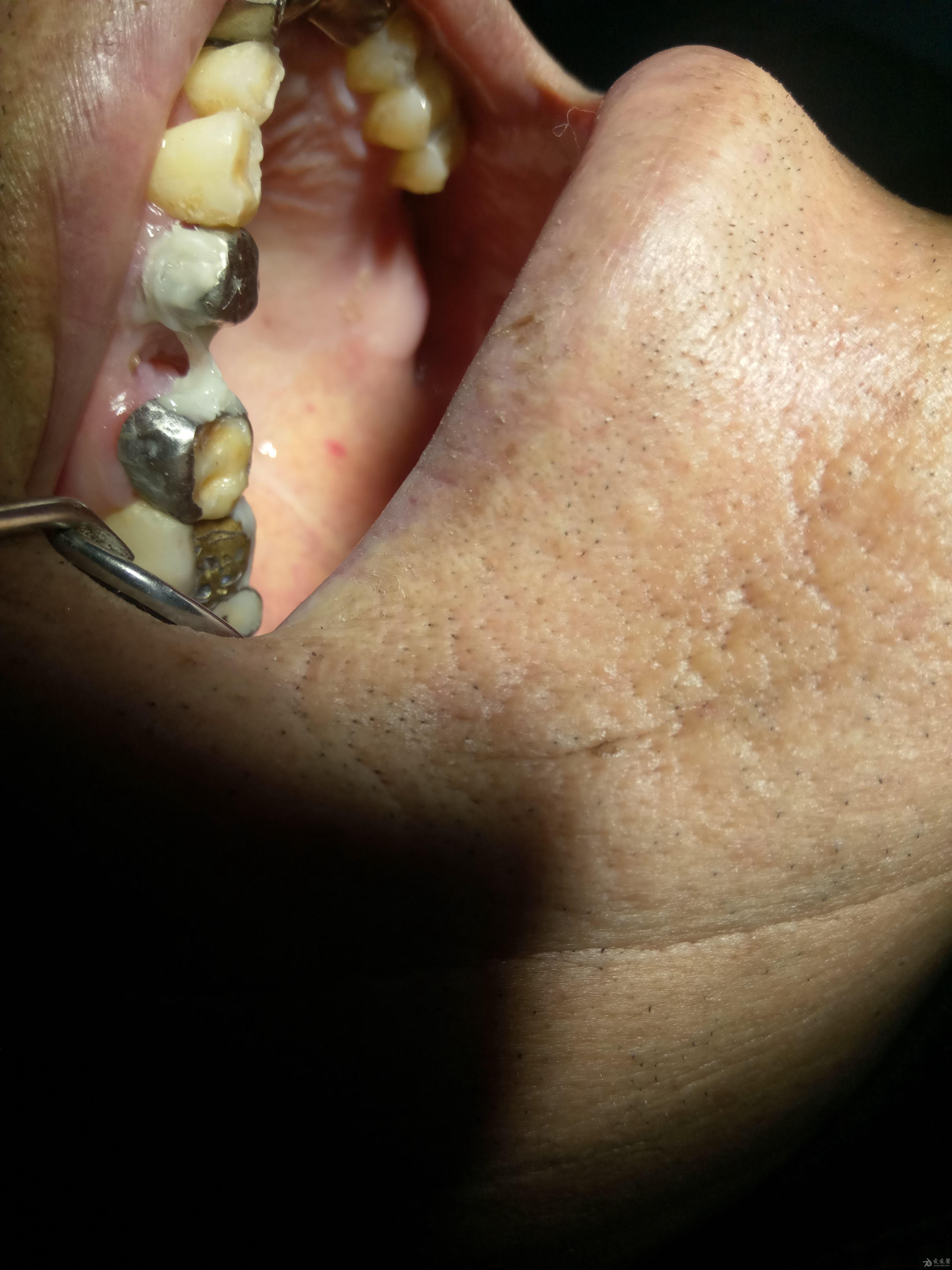 纤维带部分牙齿缺失的简单应用