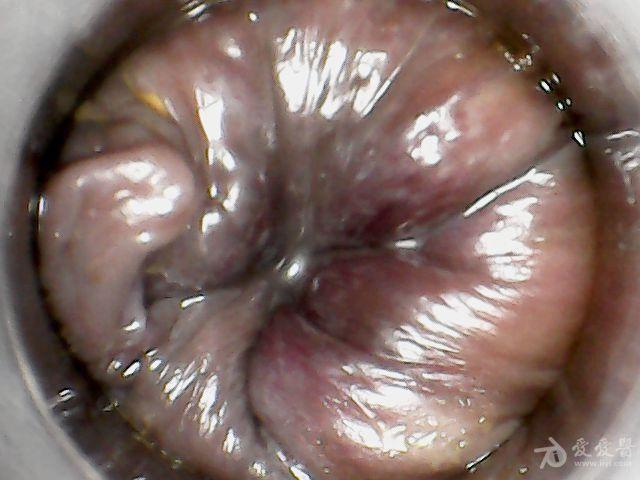 这个也是肛镜显示直肠前突痔疮核。