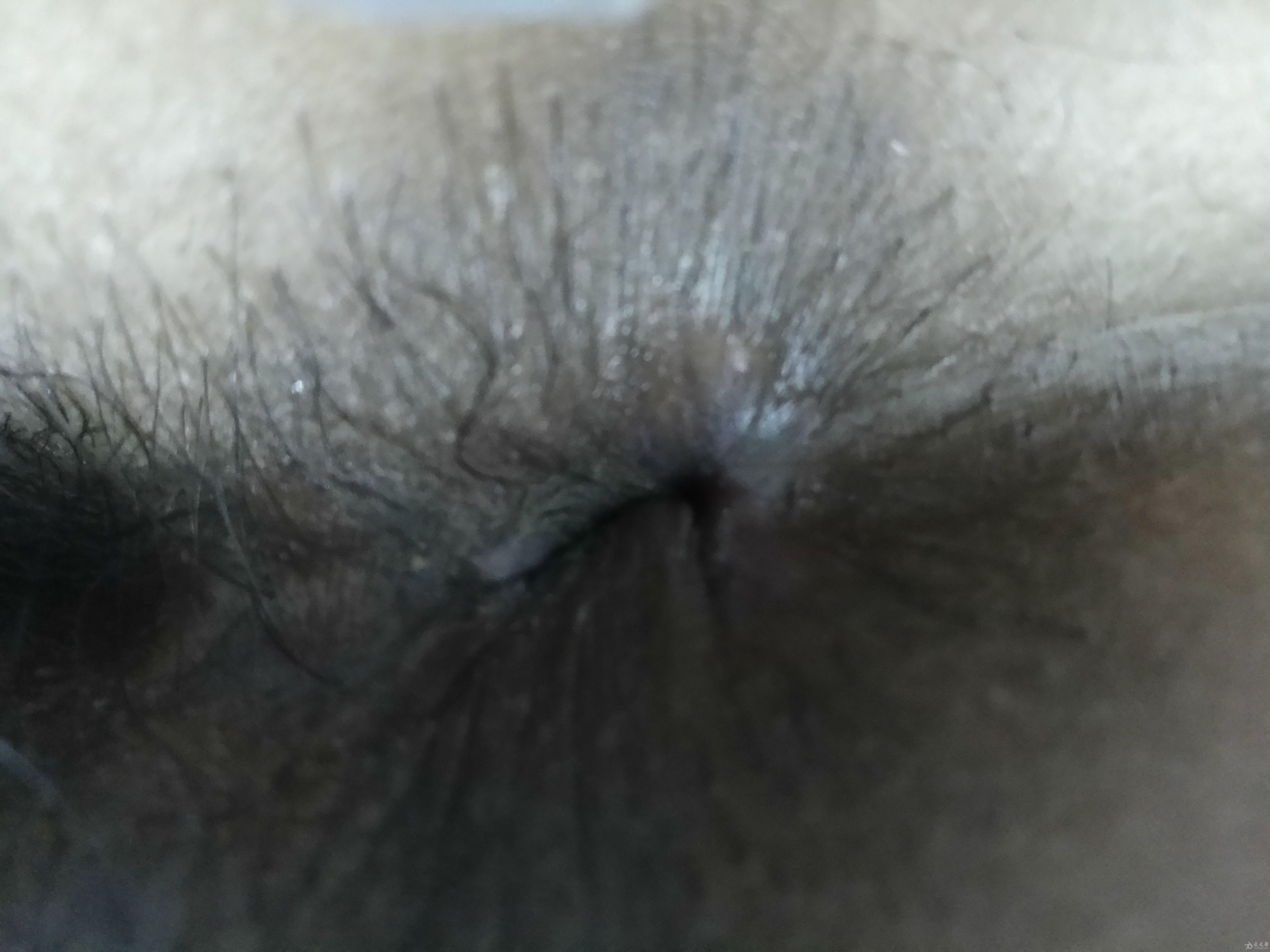 这是术后34天图片,患者自觉症状完全消失,肛门局部完全愈合。排便正常。已经治愈。